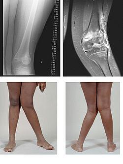 Les jambes en X